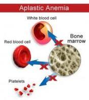 Obat Herbal Untuk Anemia Aplastik